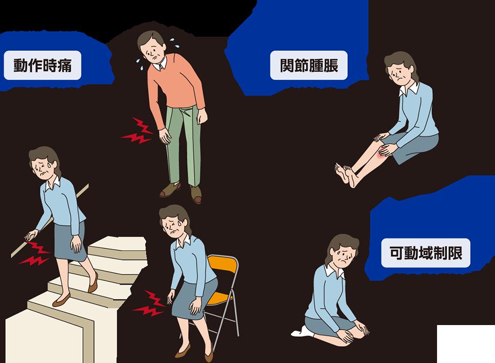 方法 膝 たまらない の が 水